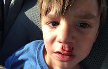 Fidget Spinner phát nổ gây chấn thương và bài học đằng sau tai nạn này