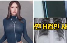 """Nữ streamer xinh đẹp chấn thương vì nhảy vũ đạo quá sung, chụp X-quang mới thấy chi tiết cực """"khủng"""""""
