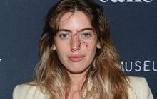 Con gái ngôi sao Stars War mang gương mặt vừa bị chó cắn chảy máu lên thảm đỏ khiến dân tình hoang mang cực độ
